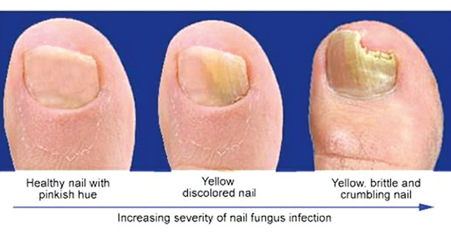 Fingernail fungus drops nail ftempo for 33 fingers salon reviews