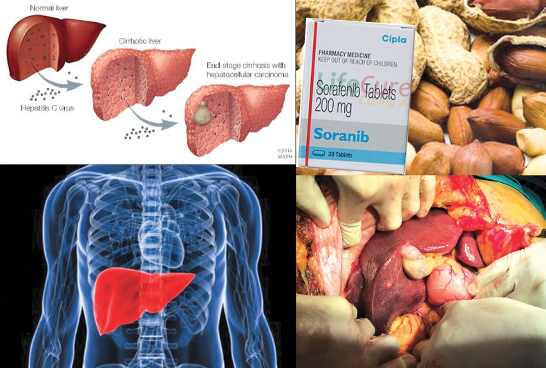 Living with a healthy liver | Daily News